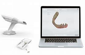 3D Mundscanner